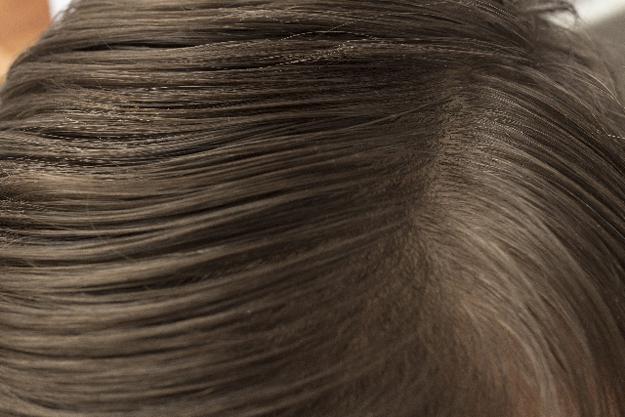 髪の毛と頭皮