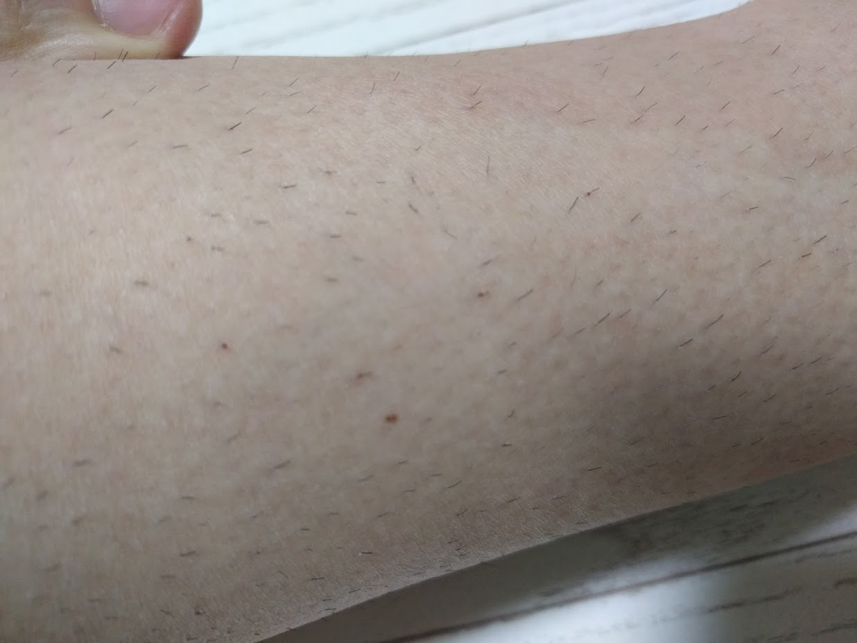 痒い剃り跡